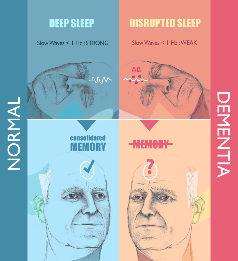 Sleep and Dementia